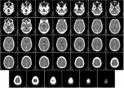 CTで撮った脳